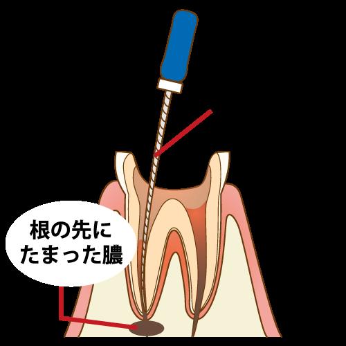歯の神経を残せるかどうか