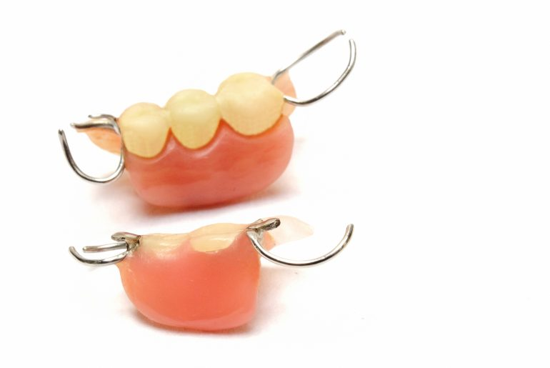 部分入れ歯(1本~複数本の歯を失った場合)