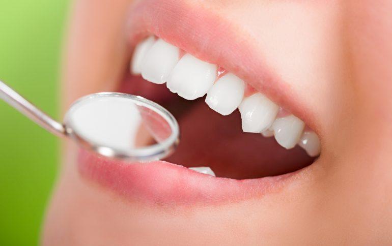 MI治療(できるだけ歯を削らない治療)