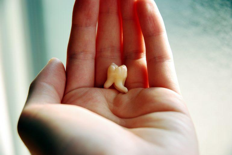 歯を失ったら選択肢にインプラントを