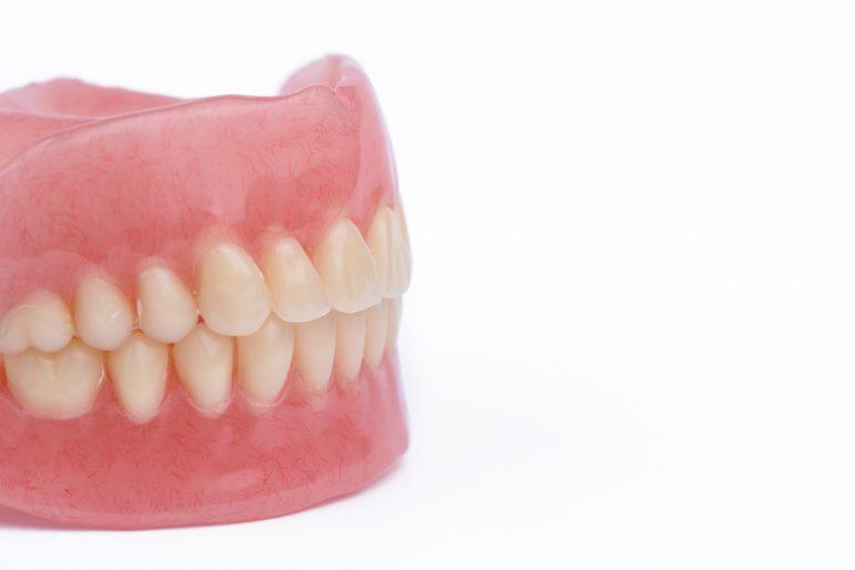自費(保険適用外)の入れ歯