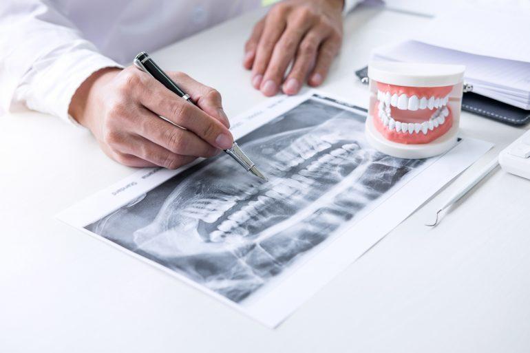 歯科用CTで正確な診査・診断