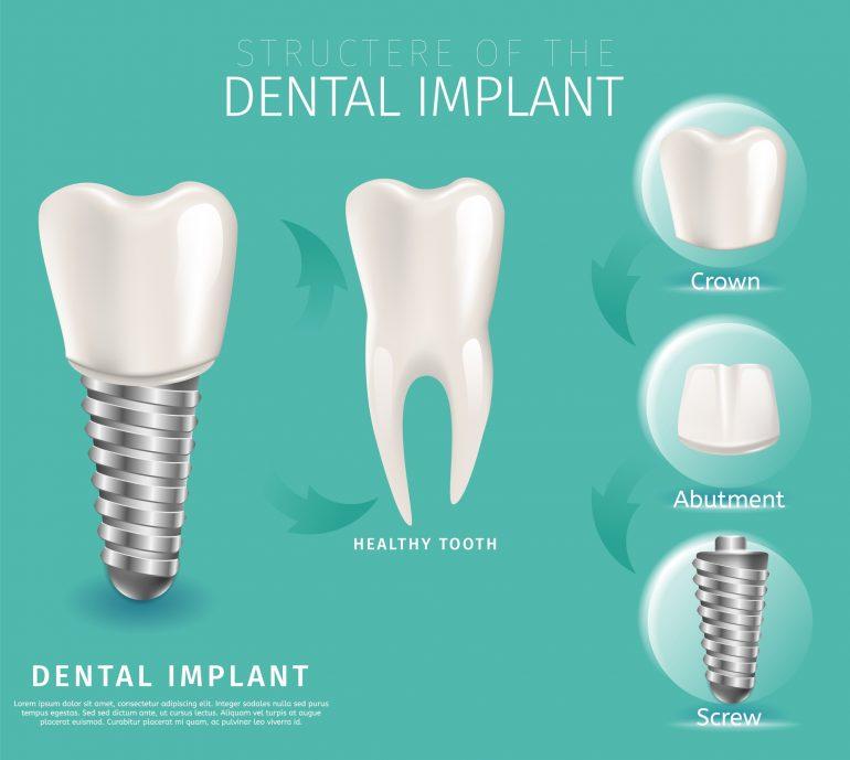 失った歯の機能を取り戻す治療